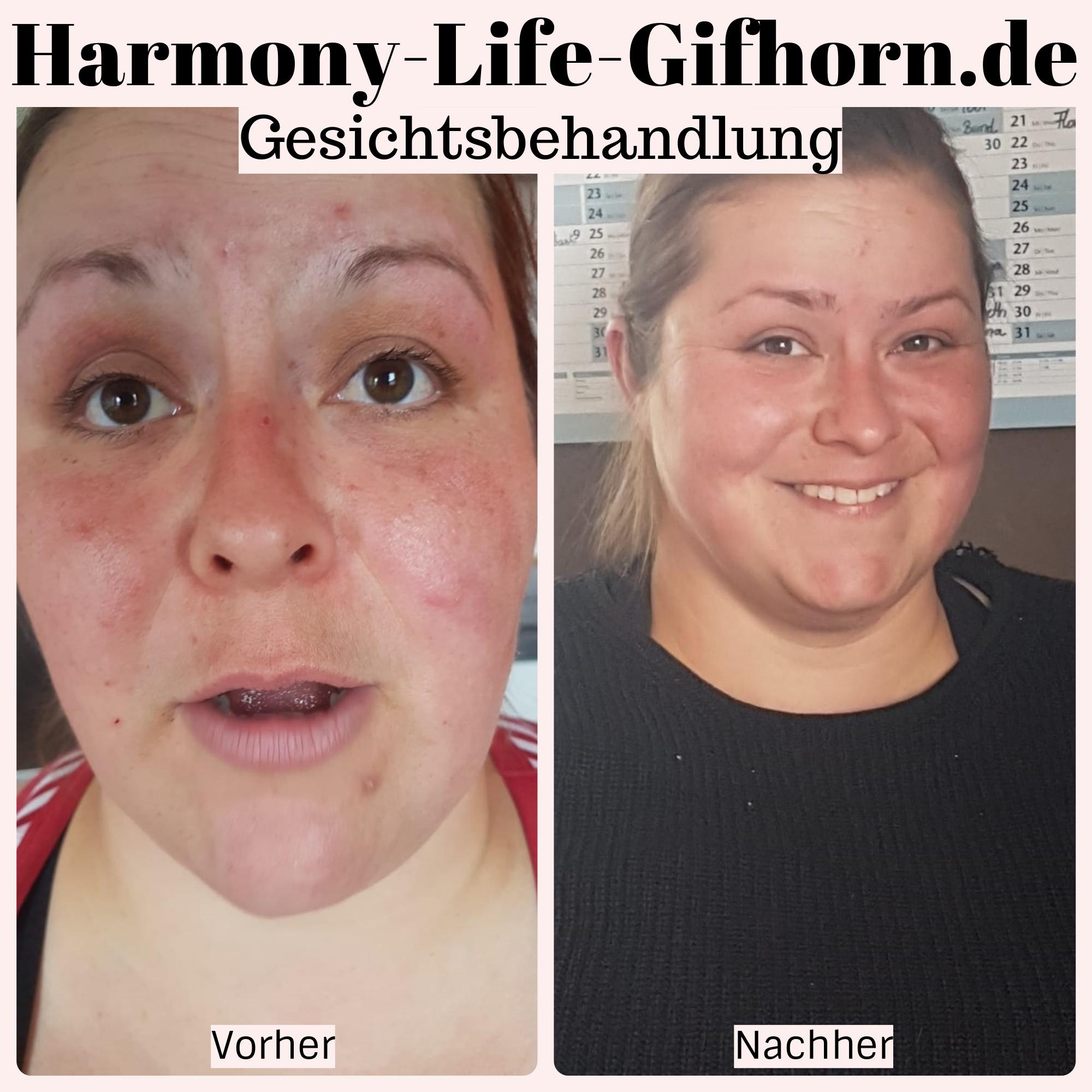 Gesichtsbehandlung Vorher / Nachher